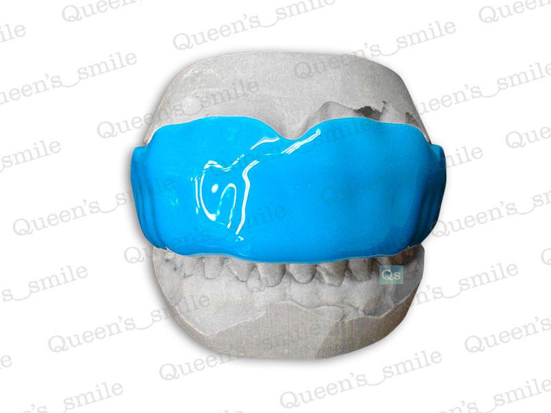 Queen's smile - Chrániče zubů